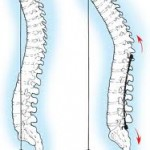 lordosis image1 150x150 Loss of Lordosis   Its Definition, Causes and Treatment