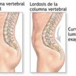 Lordosis3 150x150 Loss of Lordosis   Its Definition, Causes and Treatment