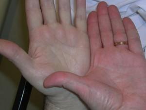 Anemia Skin Hea... Aplastic Anemia Causes