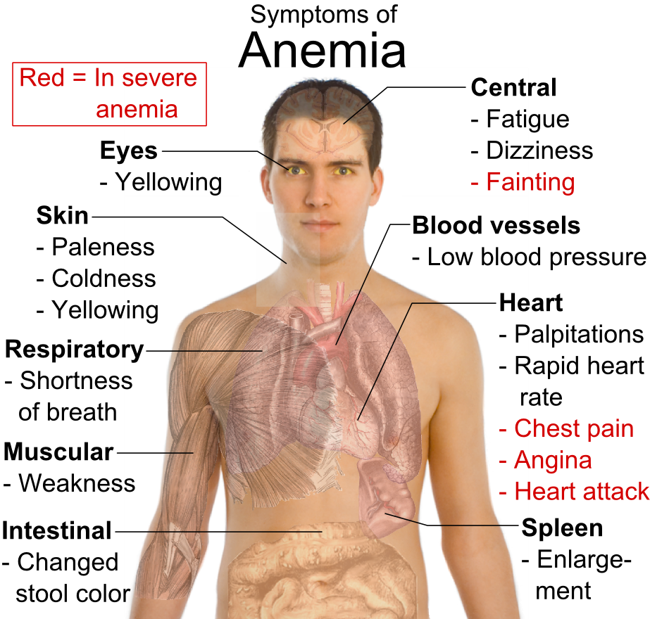 Symptoms of anemia 300x286 Anemia Symptoms and Causes for Anemia