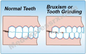 Bruxism 300x188 Don't Grind Yourself with Bruxism