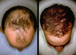 Biotin Hair Growth: Biotin Hair Growth Before And After ...  Biotin Hair Gro...