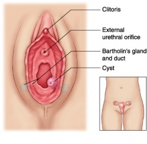 LabiaCysts 300x294 Sorts of Labia Cysts and its Causes