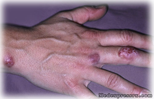 bacterial infection on skin #11
