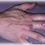 Bacterial-skin-infections