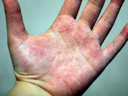Allergic Reactions To Latex
