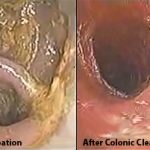 chronic_colon_after_colonic_cleansing1
