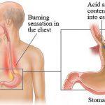 gastroesophageal-reflux-disease11